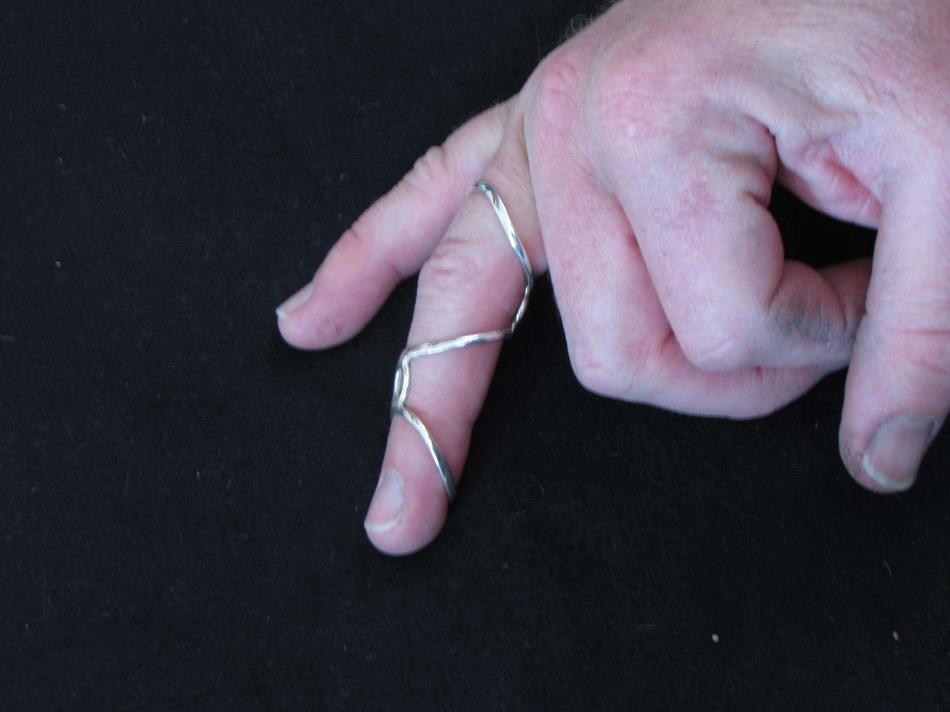 Splint Types Digisplint Ca