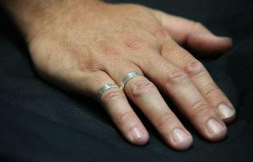 Buddy Ring Splint