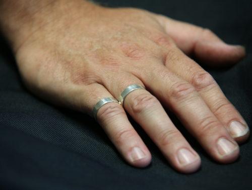 Buddy Ring Splint R4-R5